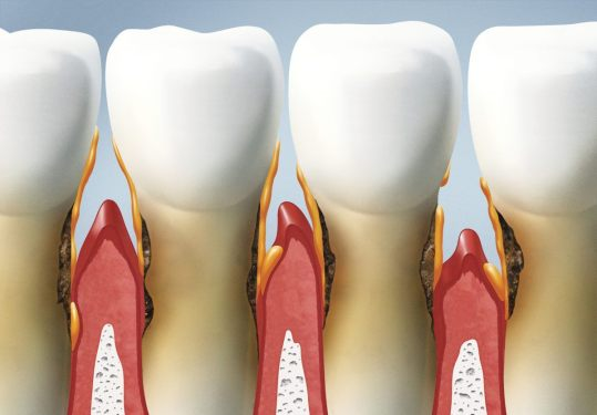 parodontoza